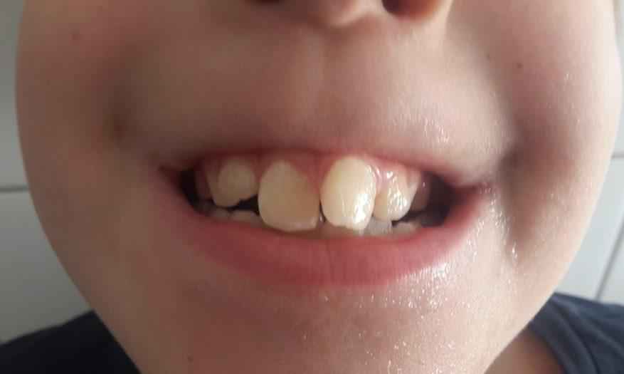 Der erste Schritt in Richtung gerade Zähne – Teil 1