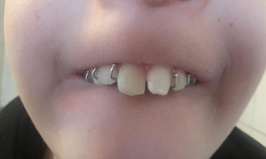 Der erste Schritt in Richtung gerade Zähne – Teil 2