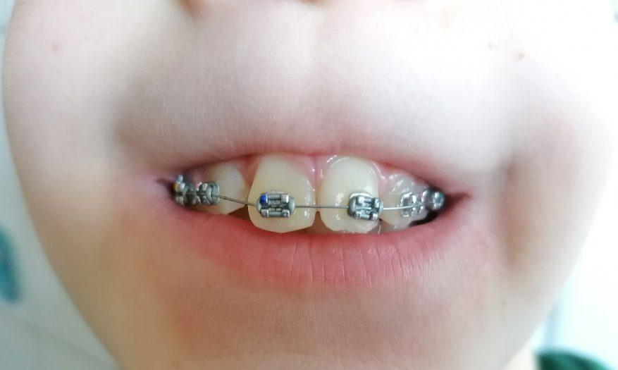 Der erste Schritt in Richtung gerade Zähne – Teil 3