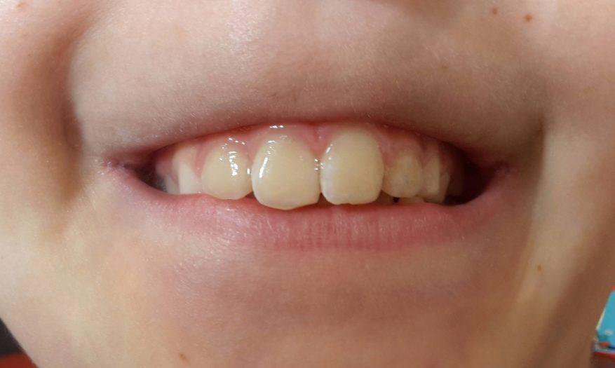 Der erste Schritt in Richtung gerade Zähne – Teil 4 Abschluss